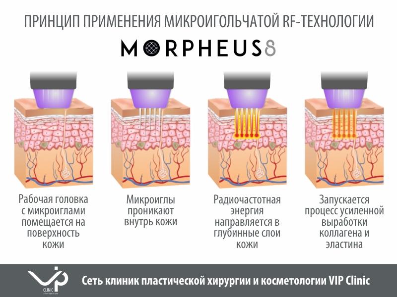 t3Morpheus 8 igly 800x600