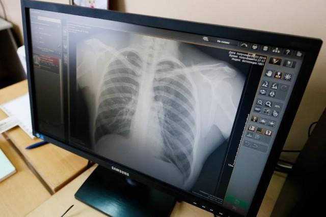 Среди новых заразившихся коронавирусом в Калининграде половина пациентов с пневмонией