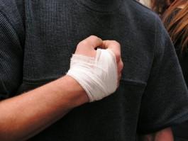 На улице Борзова в Калининграде пьяный мужчина избил и ограбил приятеля