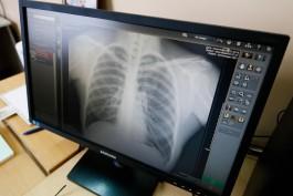 У 33% новых заразившихся коронавирусом в Калининградской области диагностировали пневмонию